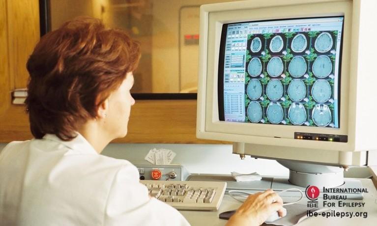 What Is Epilepsy_ - ibe-epilepsy