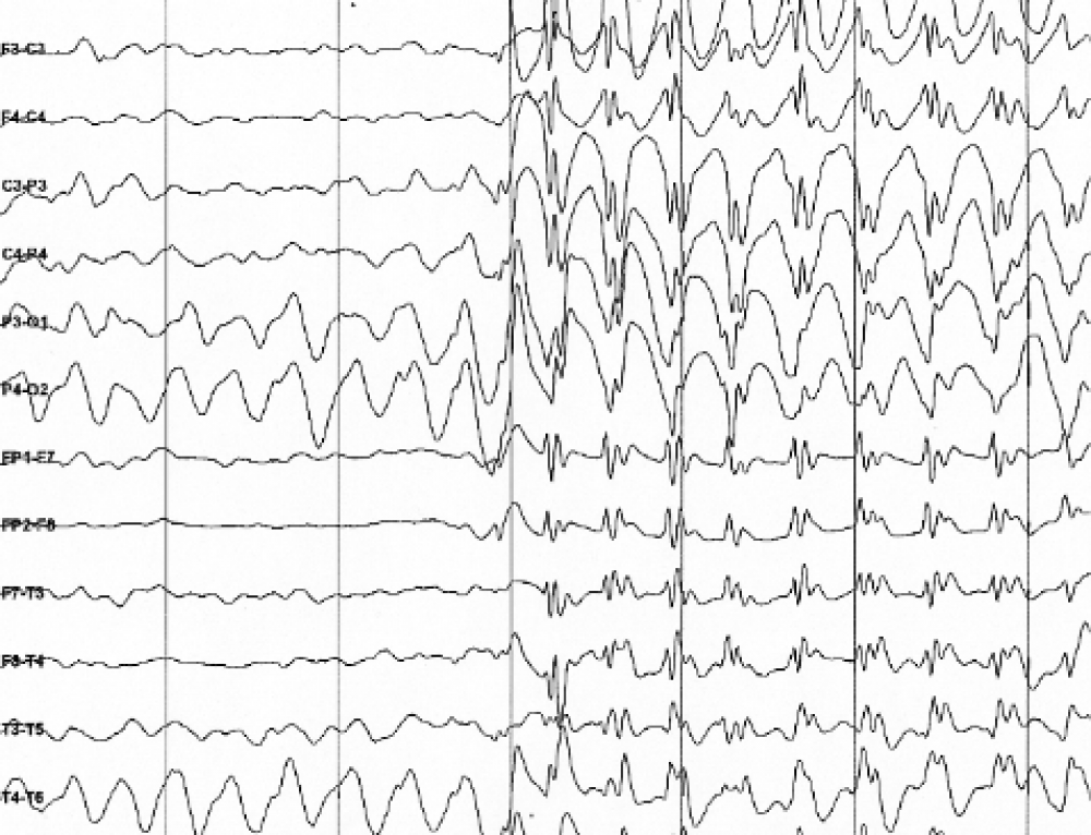 Updated Epilepsy Classification May Lead to Advances in Diagnosis, Treatment, and  Research